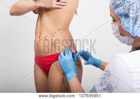 Female doctor makes dotted line on female body for cellulite correction. cosmetic surgery. lifting and breast augmentation.