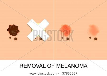 illustration of removal of melanoma. oncology. surgery.