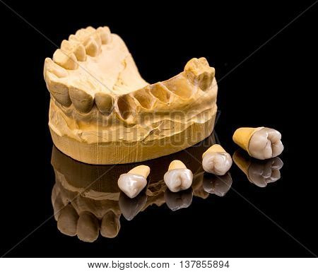Ceramic dental implants and gypsum layout, studio shot