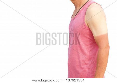 Sunburn. Asian man with massive sunburn on his arm isolated on white with space to add text