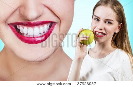 Beautiful young woman with brackets on teeth eating apple. Before and after concept