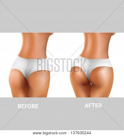 before and after sexy buttocks exercise for healthy concept