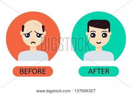 Man with hair loss problem before and after hair treatment and hair transplantation. Male hair loss set in cartoon style. Perfect for hair clinics and diagnostic centers. Vector illustration.