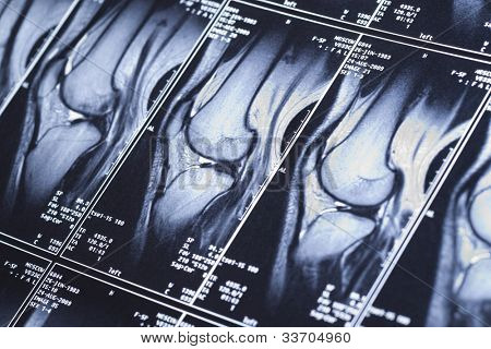 My knee MRI - sport trauma, damage of cross-shaped ligaments