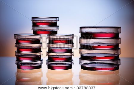 Petri dishes with samples of biochemical laboratory