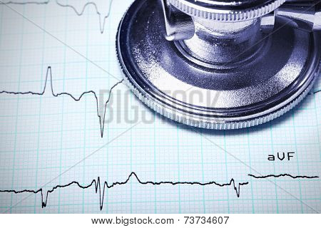 Close Up Of A Stethoscope On An Ecg.