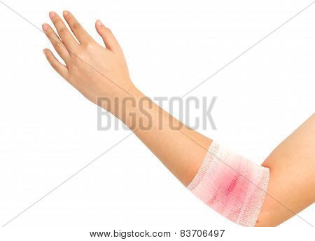 Forearm And Elbow Injury ,strain ,sprained In White Bandage