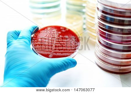 Colonies of bacteria in blood agar (culture medium plate)