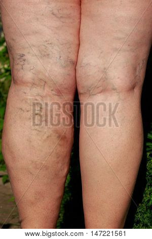 the disease varicose veins on a legs