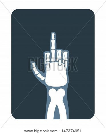 X-rays To Fuck. Bones Hands Show Thumbs Up. Obscene Gesture. Medical Illustration