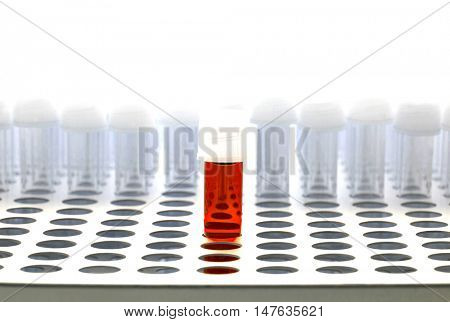 Blood test tube in lab