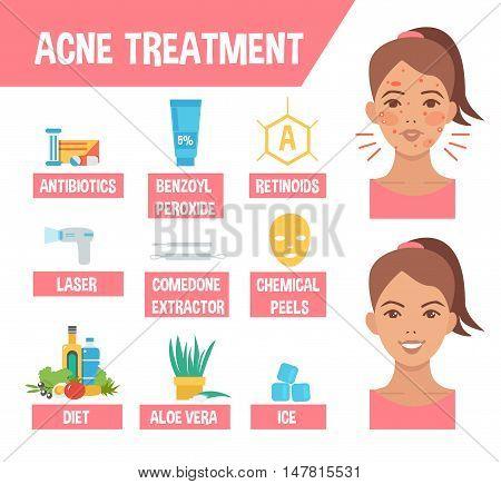 Acne treatment procedures. Acne infographic elements. Vector illustration.