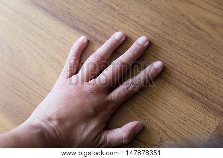 Swollen Hand From Wasp Sting
