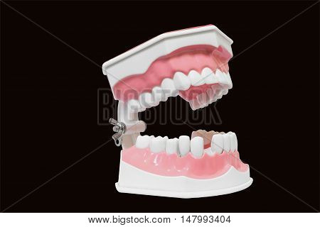 Dental Model of teeth and broken Isolated on black background clipping path