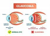 Glaucoma Illness Vector Illustration. Cross Section Close-up Comparement With Normal And Damaged Eye poster