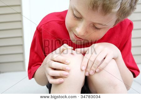 Boy with a scraped knee