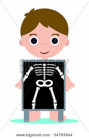 X Ray Bones Kid