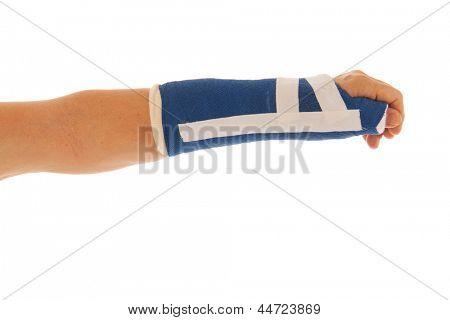 Broken wrist in blue gypsum isolated over white background