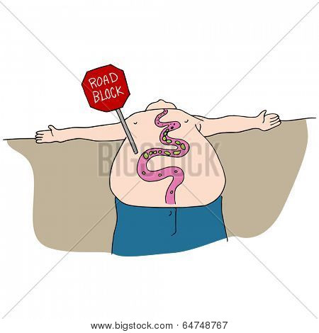 An image of a blocked digestive track.