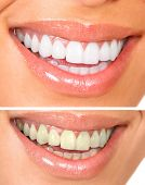 stock photo of human teeth  - Whitening - JPG
