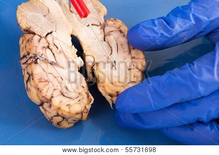 Cross-section Of A Cow Brain
