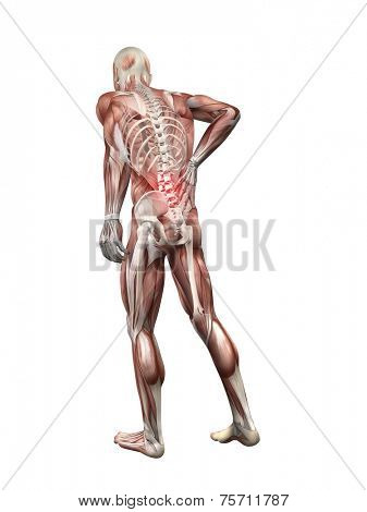 painful back illustration