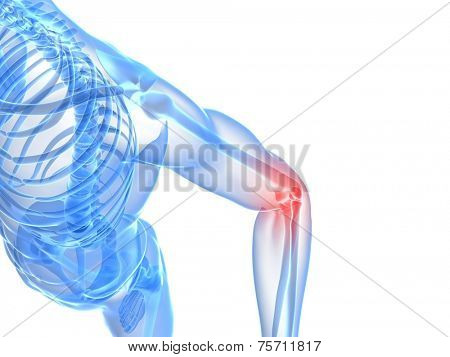 painful elbow illustration