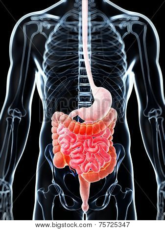 3d rendered illustration of a painful bowel