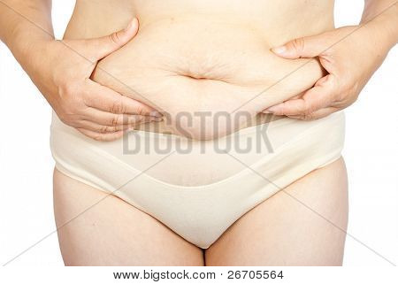 Fat woman pinching her fat tummy