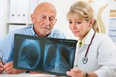 image of roentgen  - Doctor explaining x-ray results to senior patient