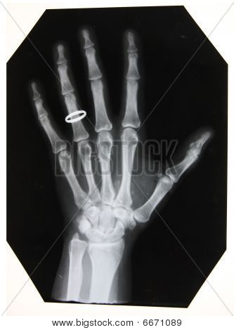 x-ray picture