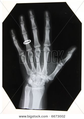 x-ray picture of woman hand