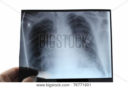 X-ray Of The Chest In Hand Of Specialist.
