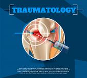 Realistic Illustration Traumatology Medicine In 3d. Vector Banner Image Anatomy Human Knee Joint Tre poster