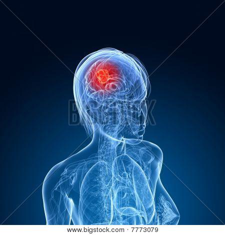 weibliche Gehirn Krebs