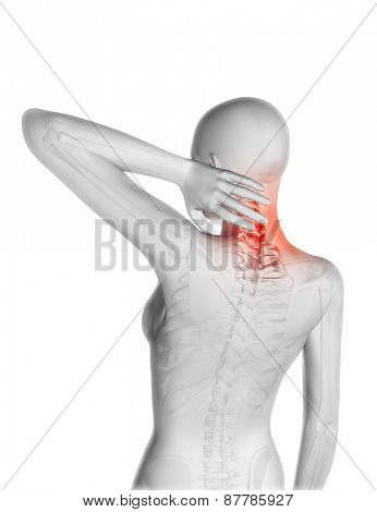 3D render of a female figure and skeleton with neck pain