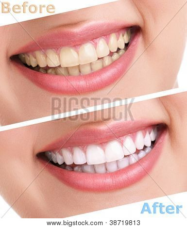 bleaching teeth treatment , close up, isolated on white, before and after