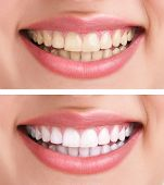 stock photo of dentures  - whitening  - JPG