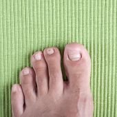stock photo of human toe  - Badly infected ingrown toe nail - JPG