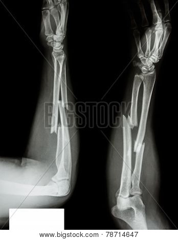 Fracture Shaft Of Radius & Ulnar Bone