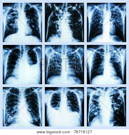Collection of lung disease (Pulmonary tuberculosis , Pleural effusion , Bronchiectasis )