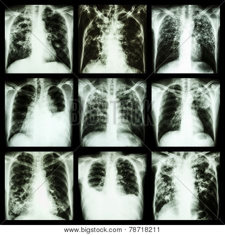 Collection Of Lung Disease (pulmonary Tuberculosis,pleural Effusion,bronchiectasis)