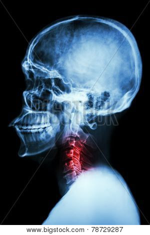 X-ray Asian Skull And Cervical Spine