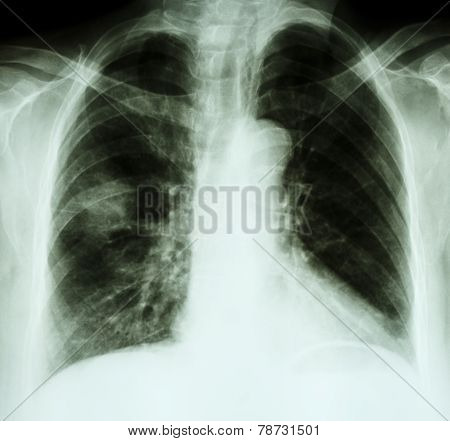 X-ray chest of lung cancer patient ( opacity at right lung )