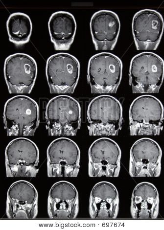 Mri Brain Coronal Post Contrast