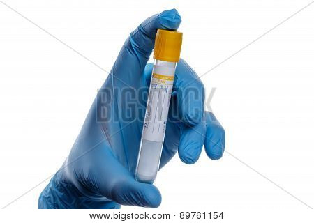 Hand With A Test Tube