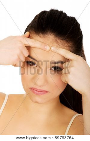 Teenage woman squeezing pimple on forehead.