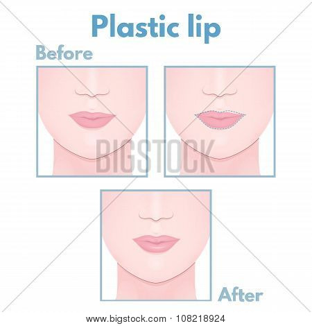 plastic surgery lip