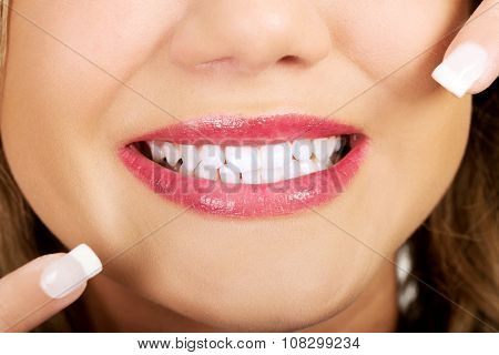 Young beautiful woman pointing on her perfect teeth.