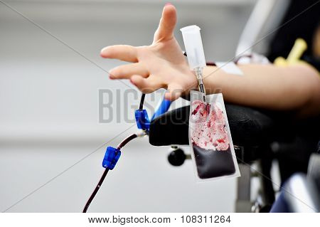 Blood Donor Hand With Palm Opened